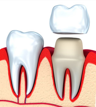 Dental Crowns in Maricopa AZ