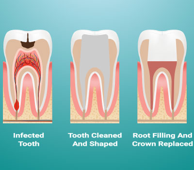Root Canal Treatment in Maricopa AZ
