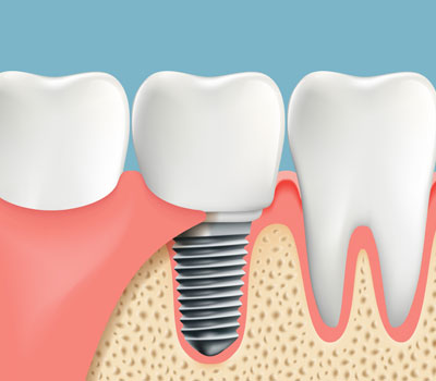 Dental Implants Maricopa AZ